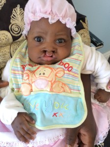 Grace, preop bilateral cleft lip
